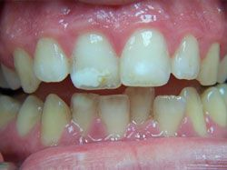 Single Tooth Bleaching and Bonding Before